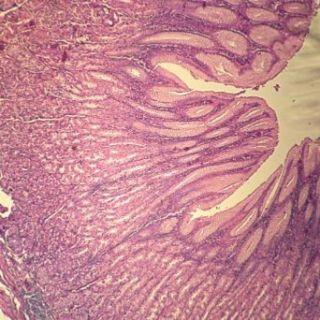 Human Fundic Stomach, sec. 7 µm H&E Microscope Slide: Industrial & Scientific